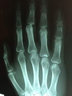 Röntgenfoto van een hand