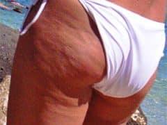 Cellulitis van je billen en dijen verwijderen