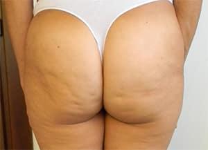 Hoe ontstaat cellulitis?
